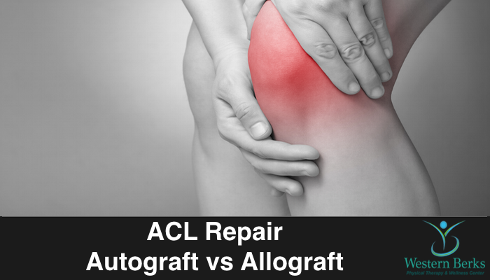 ACL Repair Autograft vs Allograft - Western Berks Physical Therapy