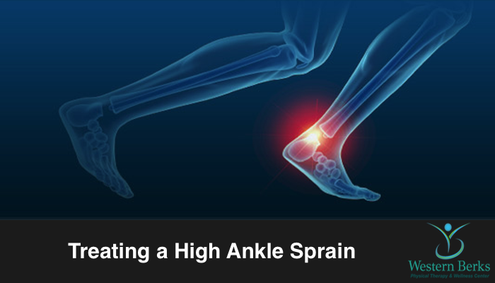 Treating a High Ankle Sprain - Western Berks Physical Therapy