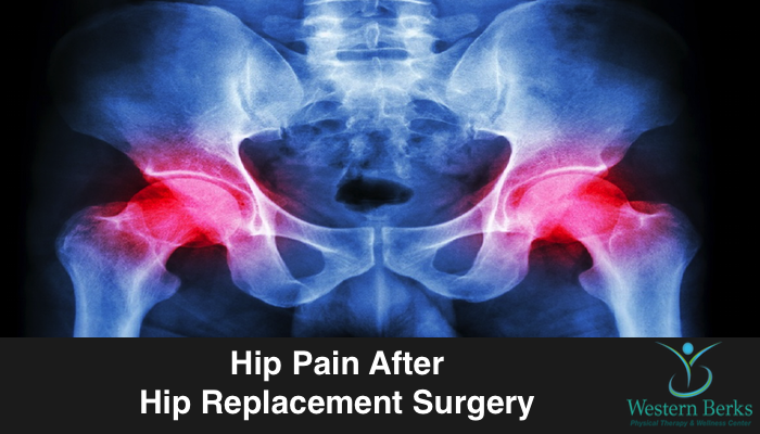 Hip Pain After Hip Replacement Surgery - Western Berks Physical Therapy