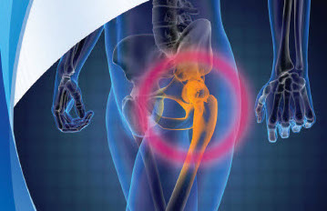 What to Expect from a Total Hip Replacement